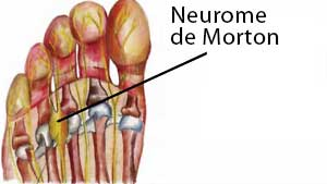 Neurome de Morton : emplacement
