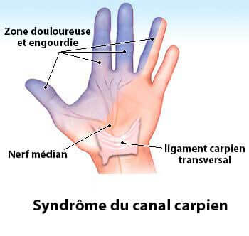 syndrome du canal carpien : schéma explicatif