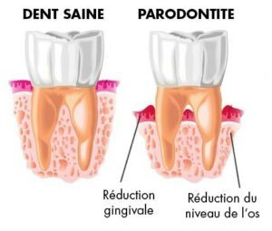 parodontite reduction des gencives